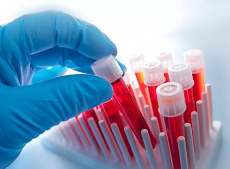 Экспертиза (Анализ) ДНК на отцовство в Новосибирске.